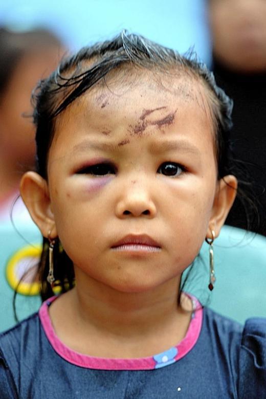 Aceh's ache