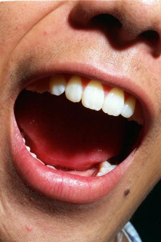 Five foods for healthier gums
