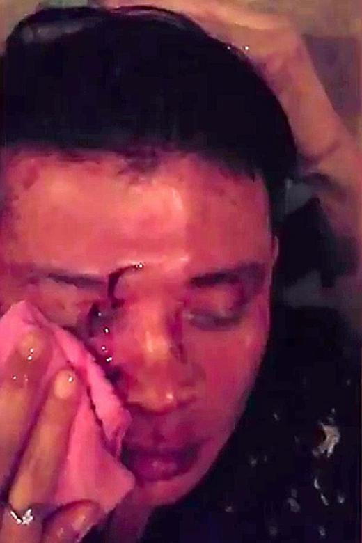 'Noisy' couple attacked in bar in Selangor