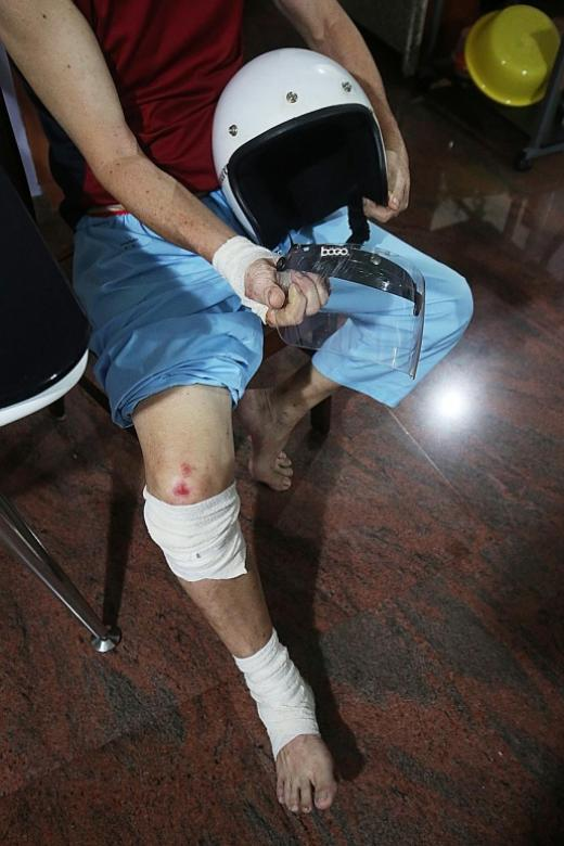 Motorcyclist, 65, injured by carpark gantry