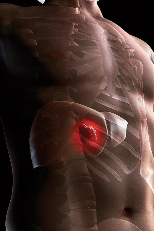 Liver cancer top cause of cancer death among men in their 40s and 50s