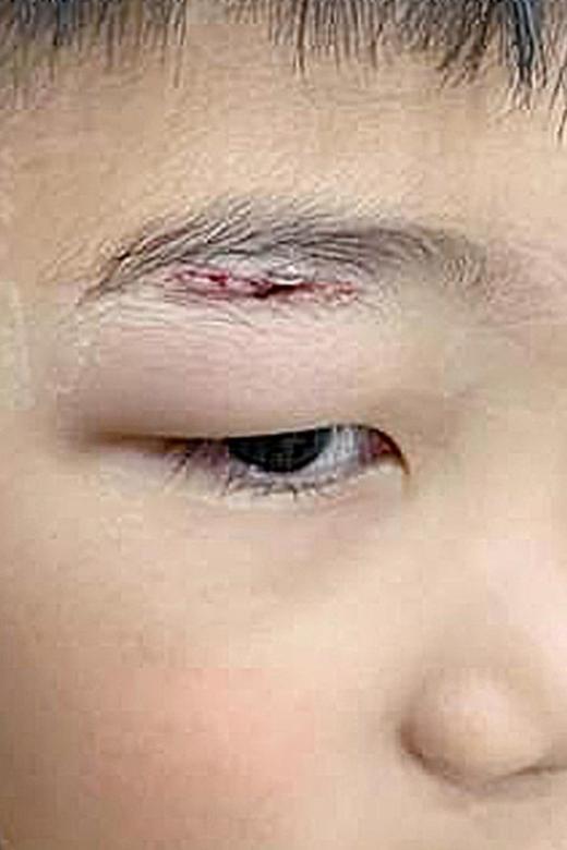 Boy, 8, suffers cut while playing at Jewel Changi maze