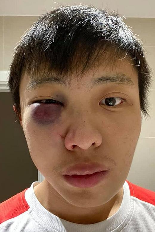 Teen charged over racially aggravated assault on Singaporean in London