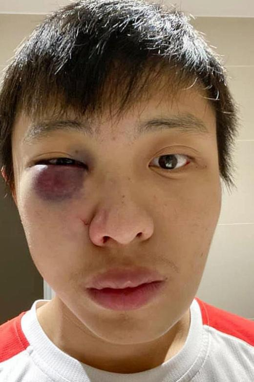UK teen admits to punching Singapore student in 'coronavirus attack'