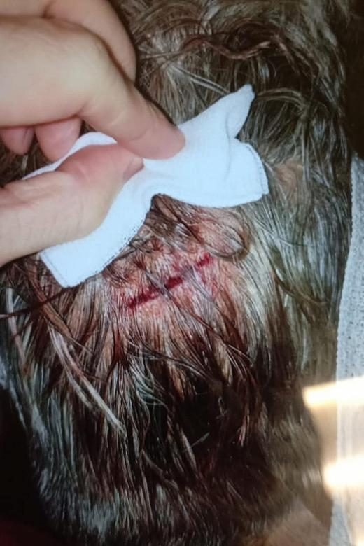 Woman given stitches after hitting head at coffeeshop table