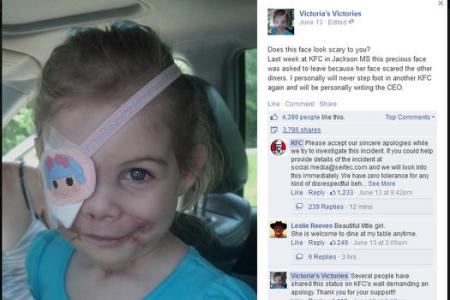 Story of scarred girl asked to leave KFC a hoax? Family takes down FB page