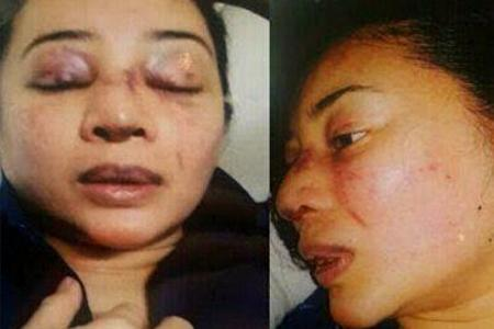 M'sian singer Awie probed for beating wife