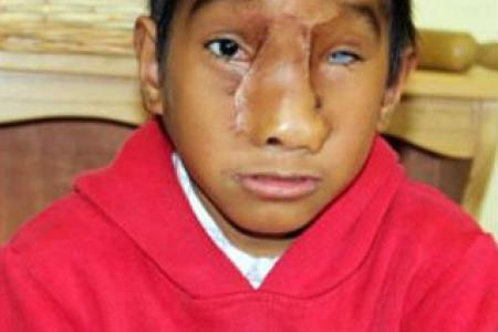 Malaysia and Australia work together to give boy a new face