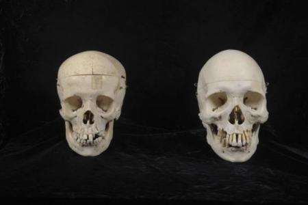 Donated skulls unearth more human remains