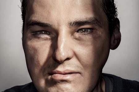 Face transplant recipient makes GQ cover