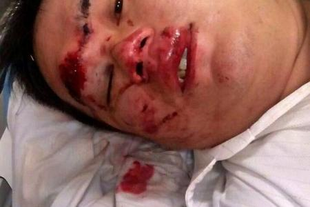Biker so lucky to survive BKE accident