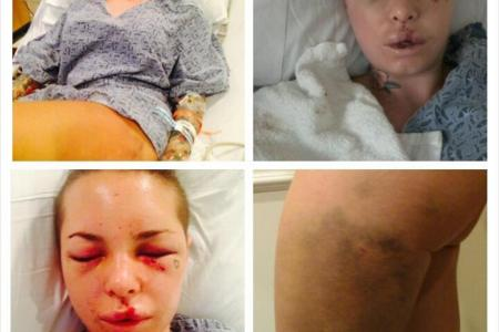 Porn star suffers ruptured liver after MMA fighter ex-boyfriend assaults her