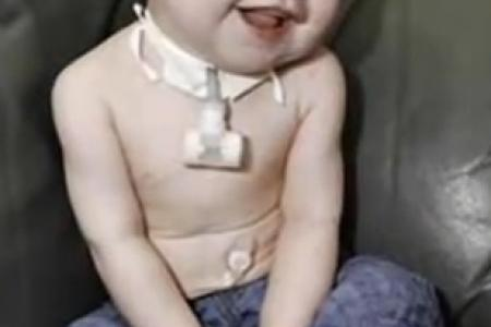 Baby survives seven heart attacks and 20-minute death