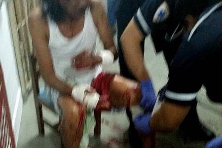 Marsiling man slashes neighbours, then dies in burning flat