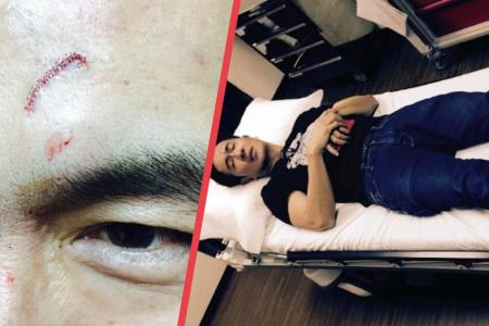Adrian Pang cuts head during LKY Musical, continues with blood dripping down his face