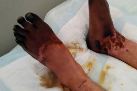 Man's shock: From food poisoning to losing his hands and feet
