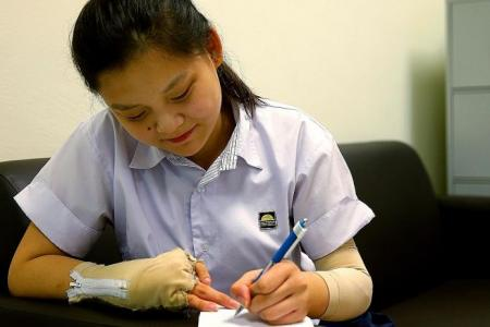 Girl who lost fingers clears N-level exams