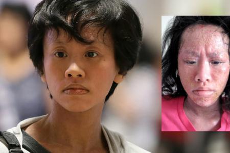Eczema almost killed her