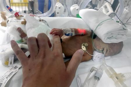 Parents of twins with rare condition: We can't hold our babies