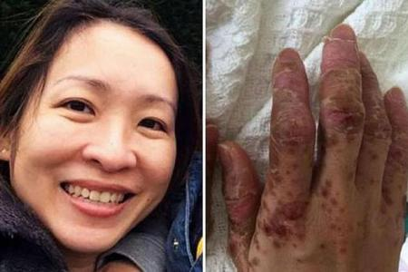 Mother loses hair, fingernails in HFMD horror