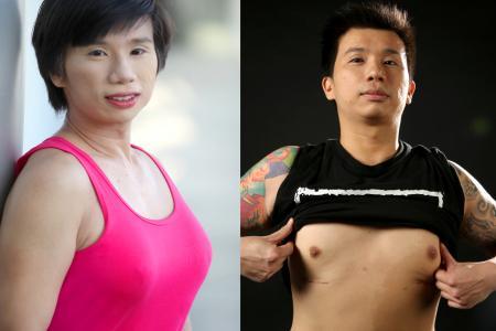 Men with boob jobs
