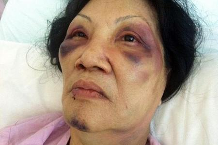 Grandma in Chai Chee attack pleaded with woman to stop