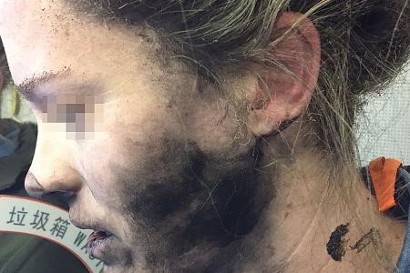 Woman burnt after her headphones explode on flight