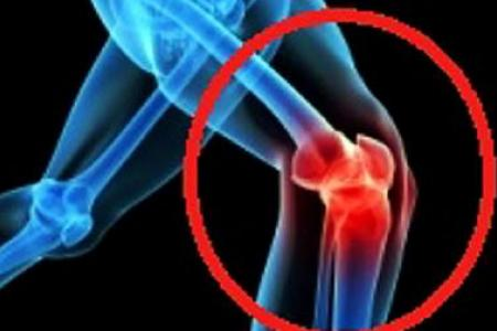 Cracking, popping joints may foretell arthritis