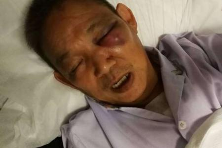 62-year-old e-bike rider arrested for allegedly assaulting man at Hougang Avenue 7