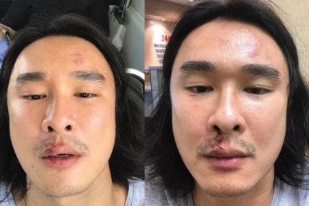 Julian Hee alleged assault