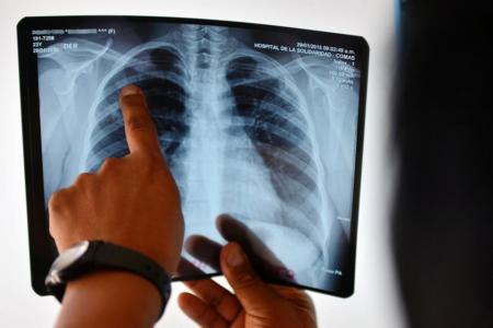 The truth about tuberculosis