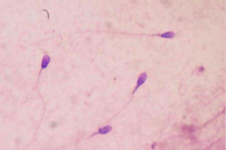 Parabens linked to male infertility
