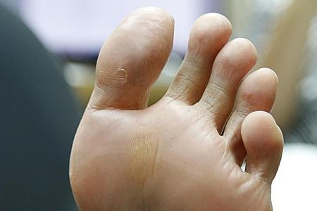 How to prevent stinky feet