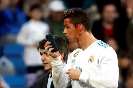 Ronaldo: Vain even when in pain