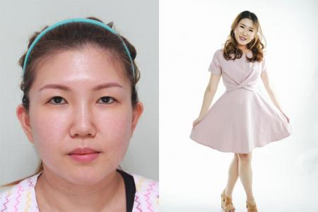 Singapore women gain confidence after cosmetic surgery