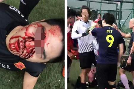 A video of the aftermath showed one of the players lying on the pitch in shock, blood dripping from his nose, as others engage in a shouting match nearby.