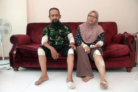 Couple on motorcycle, hurt in hit and run, appeal for witnesses