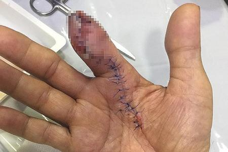 Man has part of finger amputated after being pricked by prawn