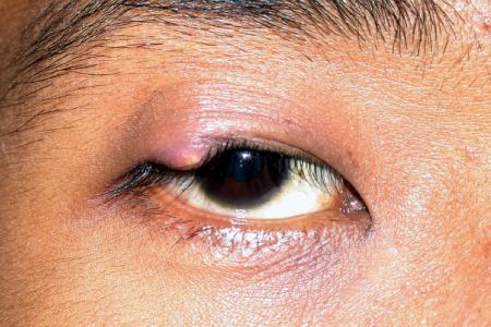 Stye or chalazion: What to do about pimples on our eyelids