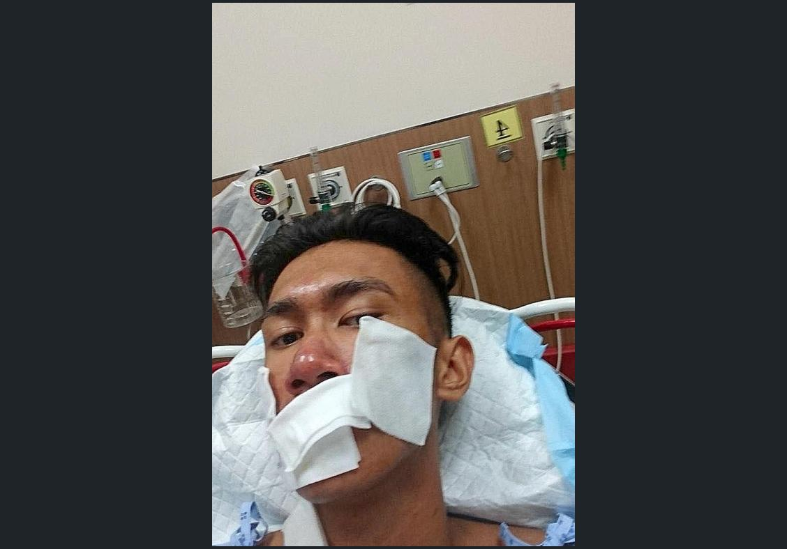Fireman caught in taxi blast recovering from burns