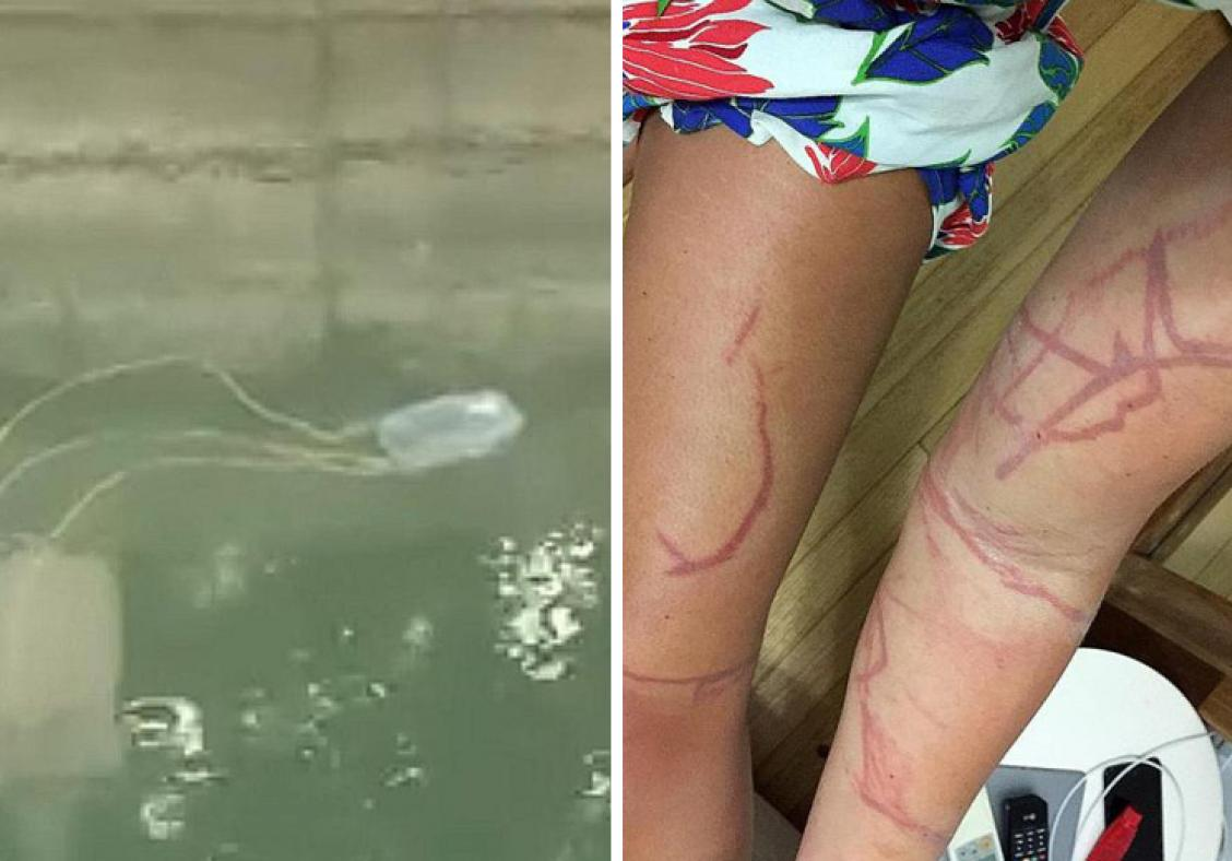 At least two people in Singapore stung by deadly box jellyfish