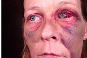 Ms Angela Brower was attacked by her boyfriend,  who smashed the orbital bone around her eye, broke her nose, and left her with extensive bruising.
