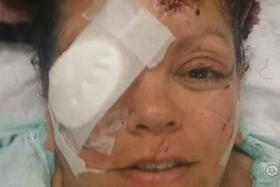 Lelani Grove in the hospital after the attack.