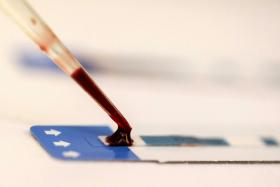 File photo of HIV testing. A US man raped his niece, infecting her with HIV, herpes and chlamydia.