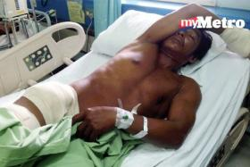 The man was injured in his hip and hand, but survived the crocodile attack.