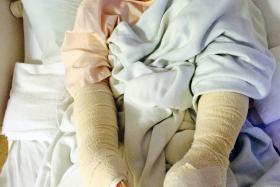 HURT: One of the injured Thai women.