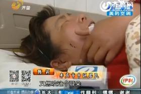 Mr Wu allegedly bit Ms Chen's right cheek.