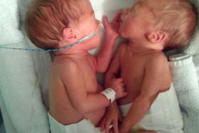 Identical twins Neve and Belle Boitelle were diagnosed with cancer.