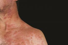 UNSIGHTLY: A person with shingles on his chest and neck.