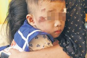 Toddler, 3, needed six stitches after 10-year-old cyclist crashes into him outside a Bukit Batok childcare centre.